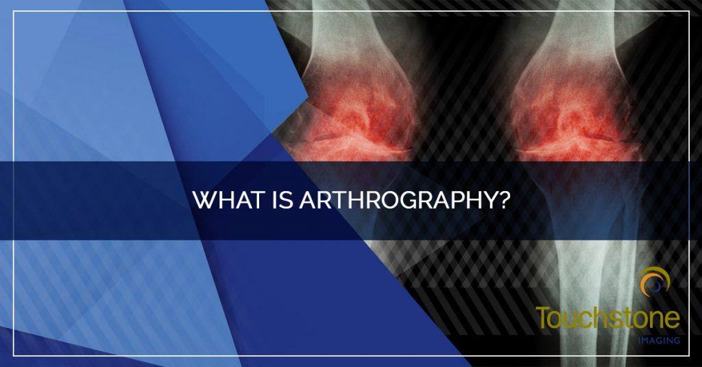 What is Arthrography?