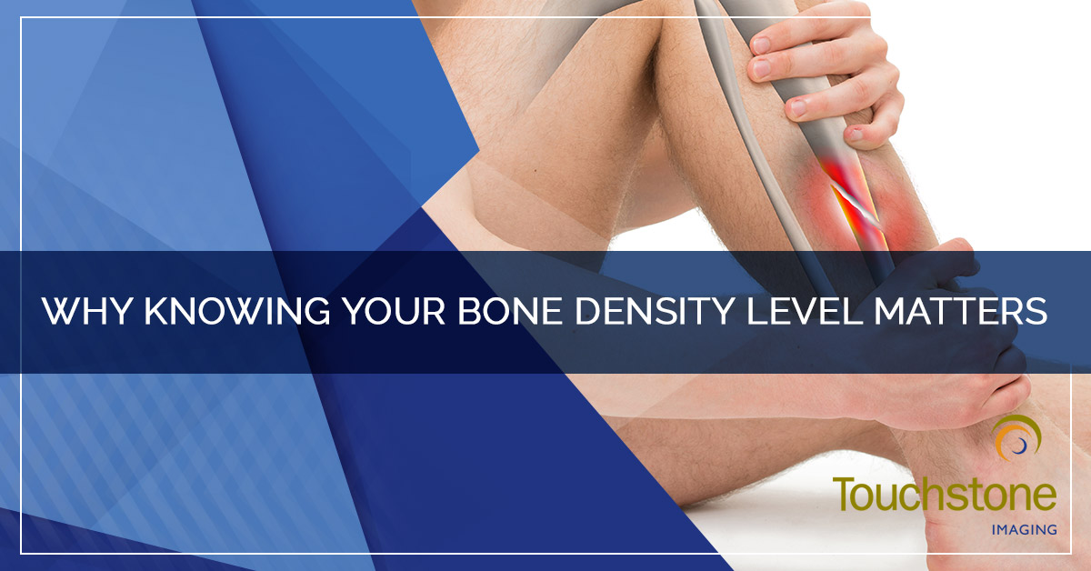 WHY KNOWING YOUR BONE DENSITY LEVEL MATTERS