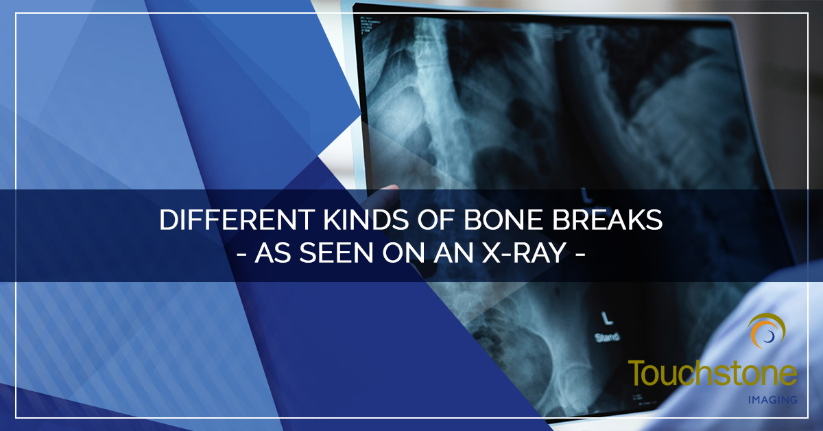 DIFFERENT KINDS OF BONE BREAKS – AS SEEN ON AN X-RAY