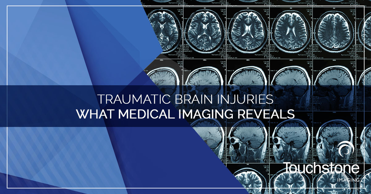 TRAUMATIC BRAIN INJURIES — WHAT MEDICAL IMAGING REVEALS