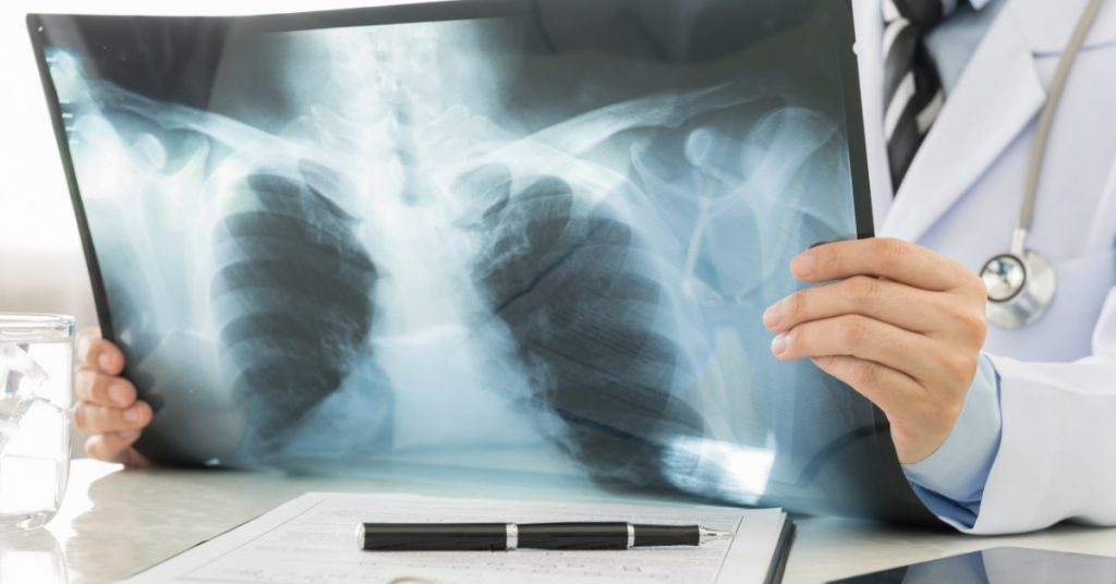 Lung Diseases That Chest Imaging Can Reveal