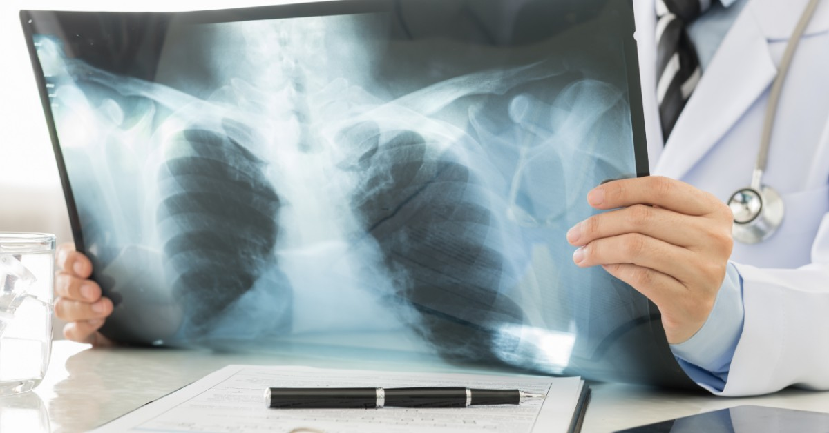HOW ARE X-RAYS PRODUCED?
