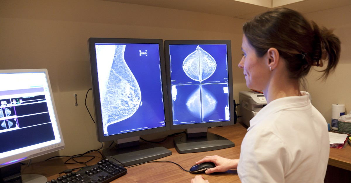 image of a woman looking at images of a breast ultrasound on computer screens in front of her