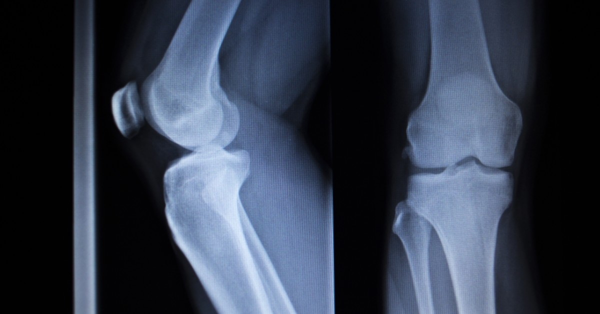 Sprains, Strains, Dislocations, and Breaks — How Medical Imaging Reveals The Difference