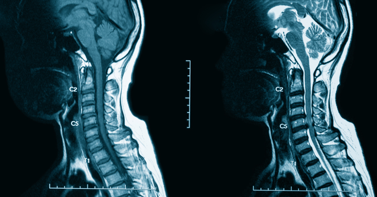 CT With Contrast and MRI With Contrast: Facts to Know